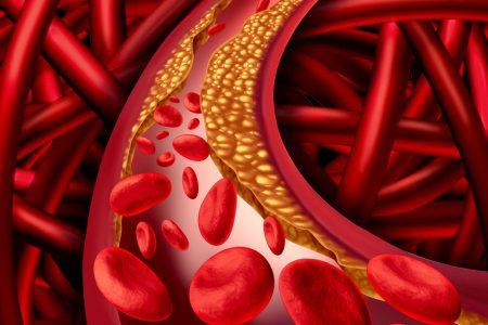 Що таке холестерин та чим він небезпечний?